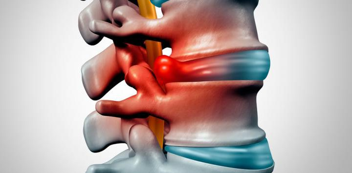 Hernias discales y fisioterapia